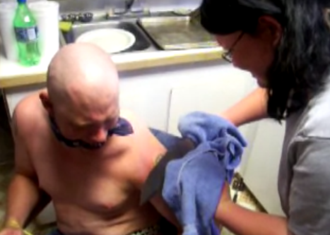 Se quita un tatuaje utilizando un cuchillo al rojo vivo