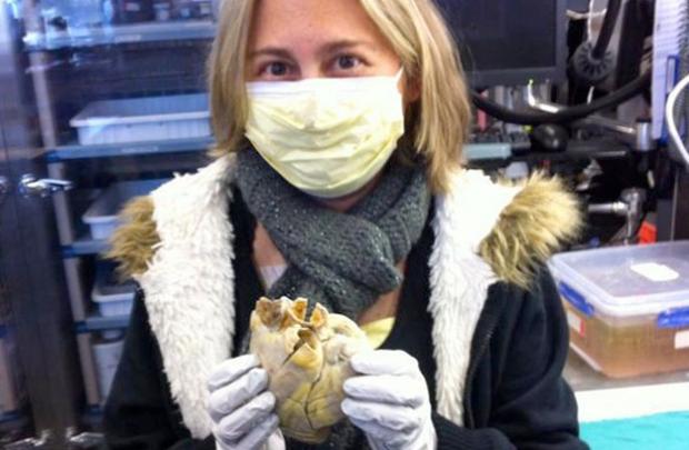 La foto de una mujer con su corazón en las manos conmueve la red