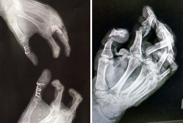 hombre-pierde-dedo-pulgar-reemplazan-dedo-pie-3