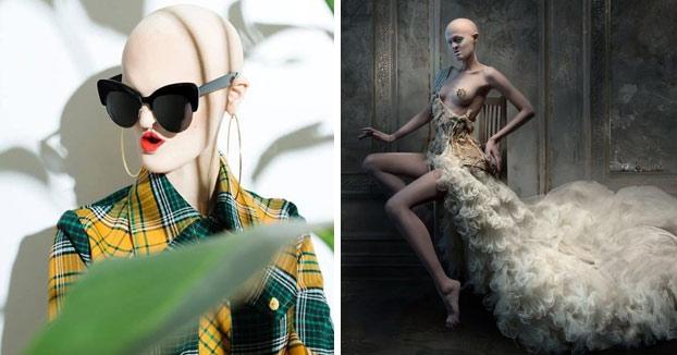 Se llama Melanie Gaydos y es una modelo de 28 años con un raro trastorno genético que ha roto los estereotipos de la moda