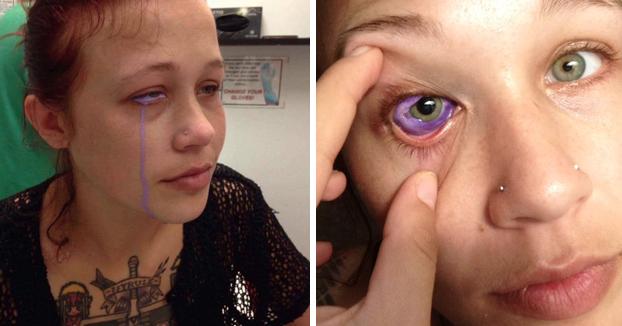 Una modelo de 24 años pierde la vista de un ojo después de hacerse un tatuaje en él