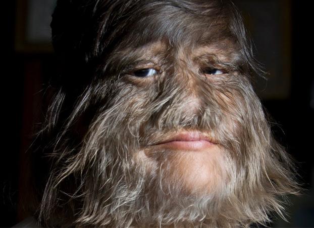 La mujer más peluda del mundo muestra por primera vez su rostro afeitado