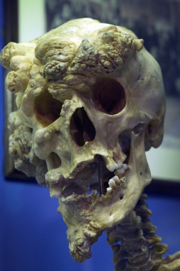 El cráneo de Joseph Merrick, más conocido como el ''hombre elefante''