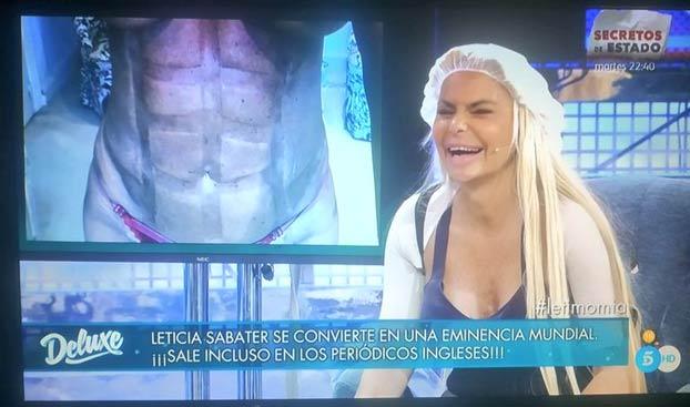 Imagen de los abdominales de Leticia Sabater después de operarse para parecerse a Madonna